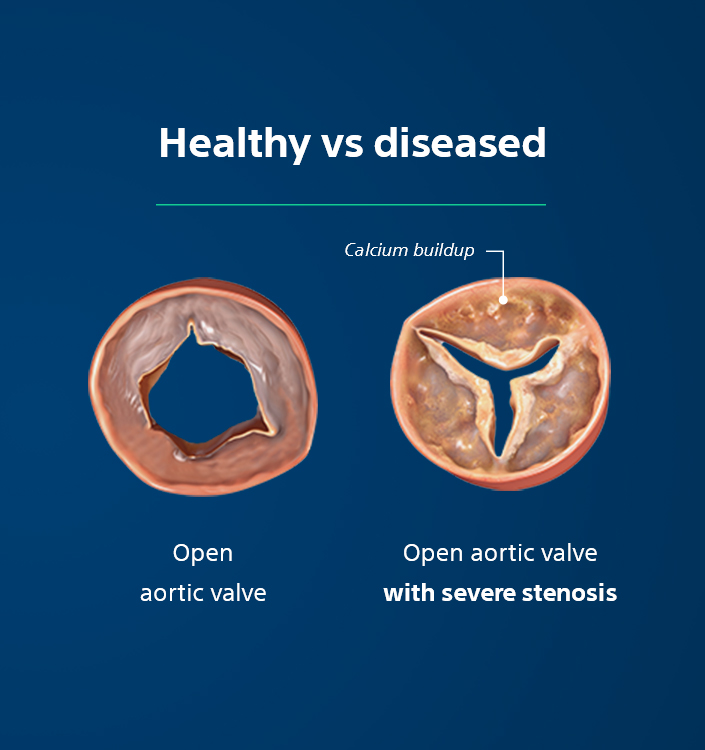 Healthy vs diseased